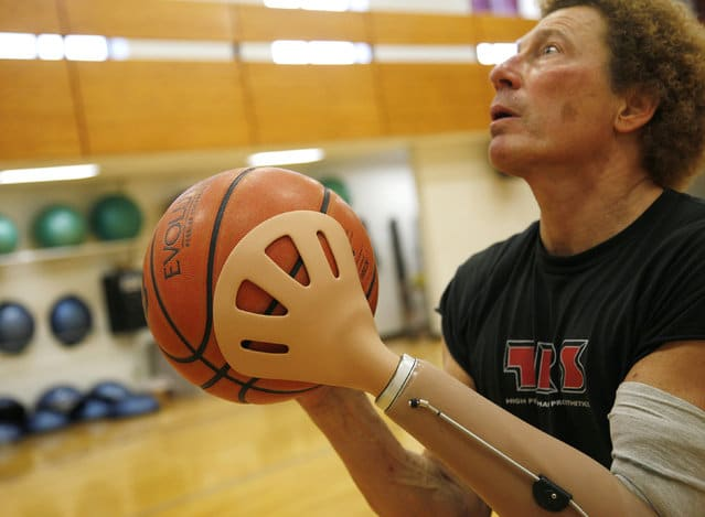 bionic body part sports